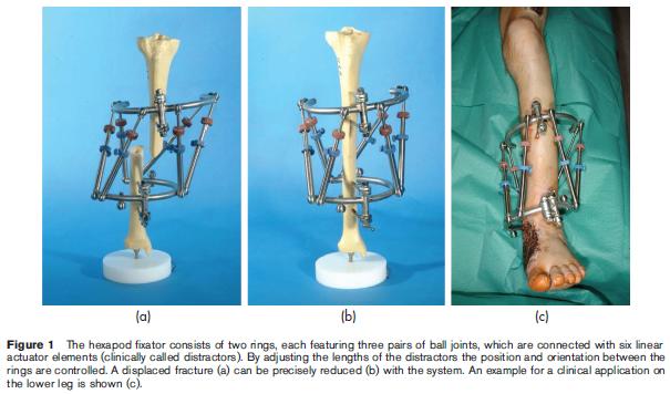 Long Bone Orthopedics