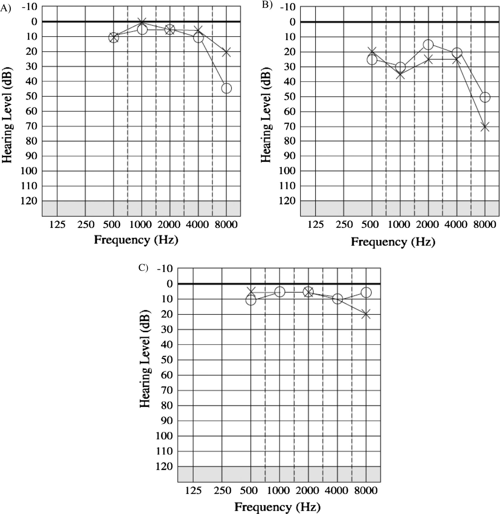 Prevalence And Audiological Features In Carriers Of Gjb2