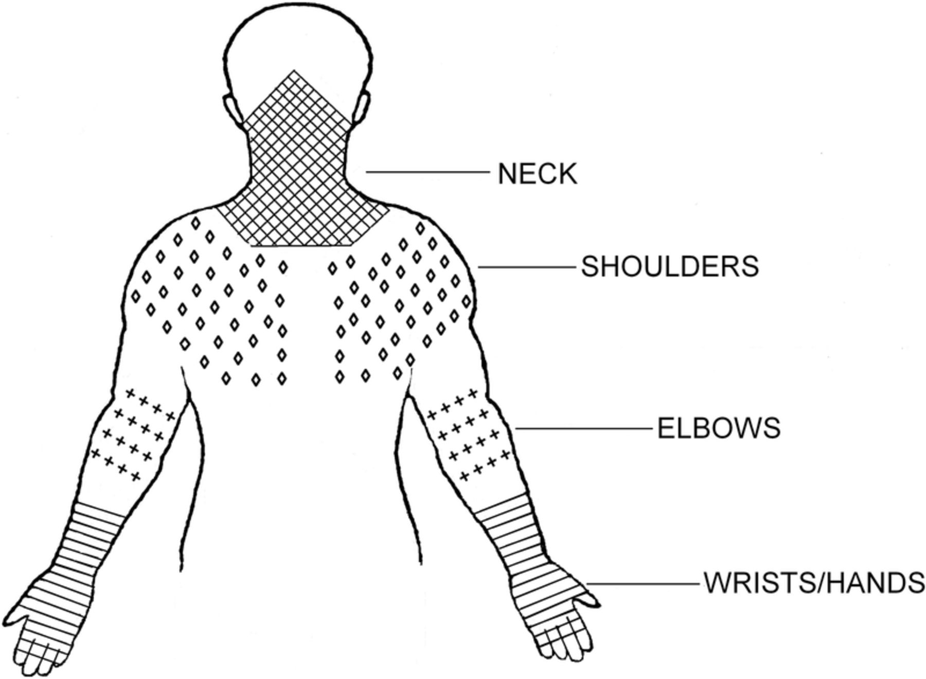 Prevalence Of Work Related Musculoskeletal Symptoms Of The