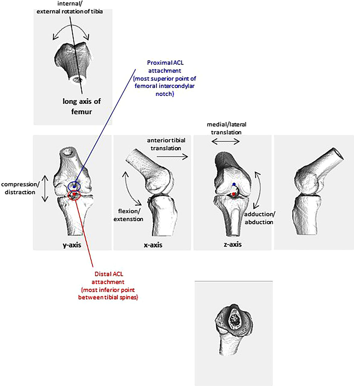 Vertical Stiffness Is Not Related To Anterior Cruciate