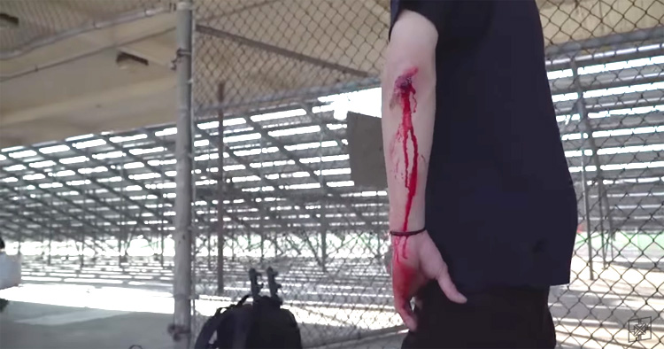 Fit Bike Co. – F-Log: The Saga of Yumi's Broken Elbow