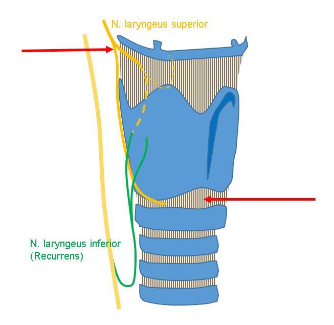 Laryngeusblockaden