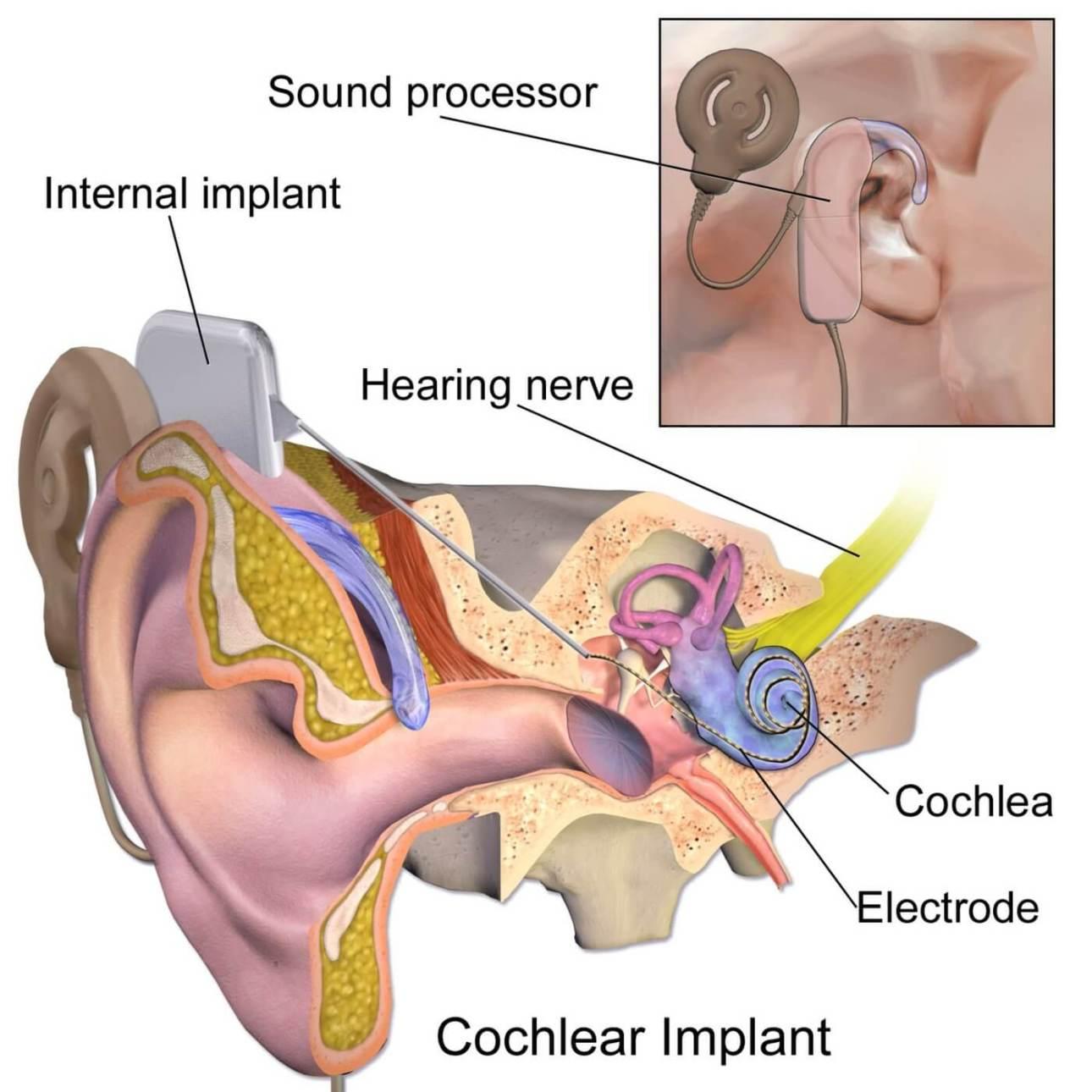cochlear - implant słuchowy - wikipedia-1400