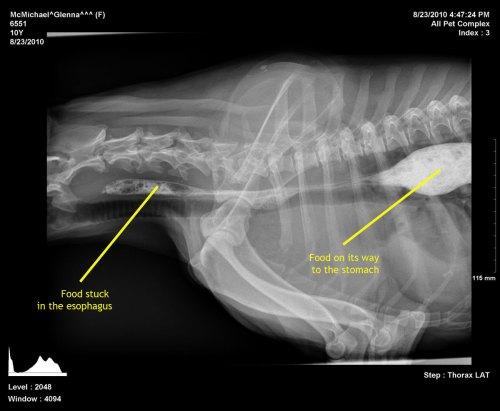 small resolution of glenna s failing esophagus