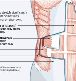 the separation of the abdominal muscles during pregnancy is likely painless and you may not even be aware of it nonetheless it s important to avoid those  [ 1160 x 721 Pixel ]