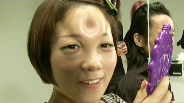 bagel shaped lump in the forehead