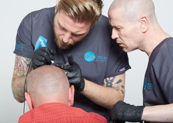 scalp-micropigmentation