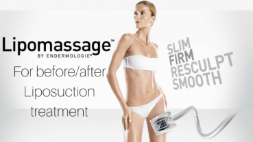 Liposuction Treatment