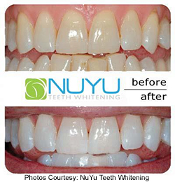 NuYu before and after