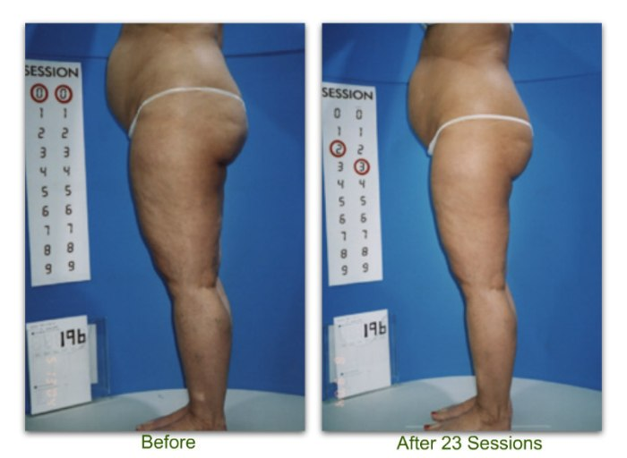 endermologie 5 before and after 23 sessions