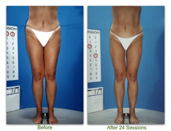 endermologie 7 before and after 24 sessions