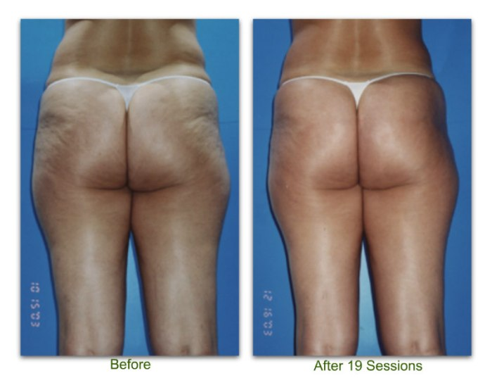 endermologie 1 before and after 19 sessions