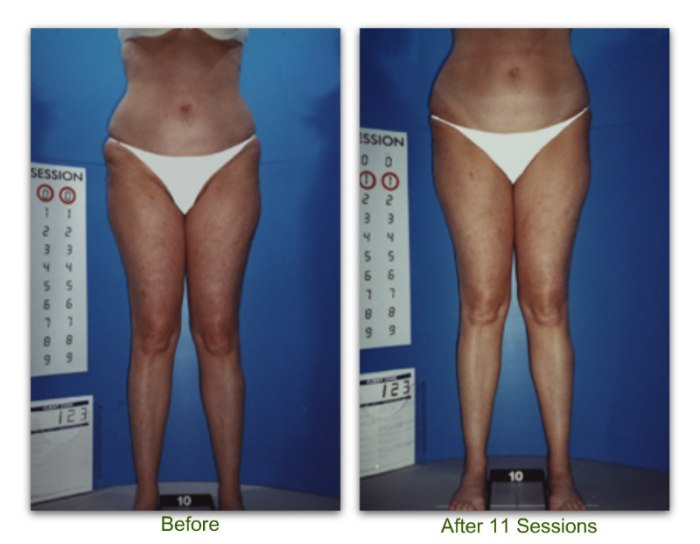 endermologie 3 before and after 11 sessions