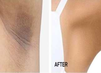 3 products to remove dark spots from crotch and armpit