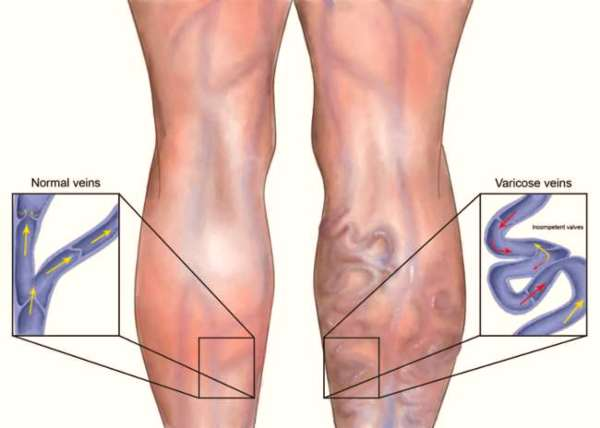 best exercises for varicose veins