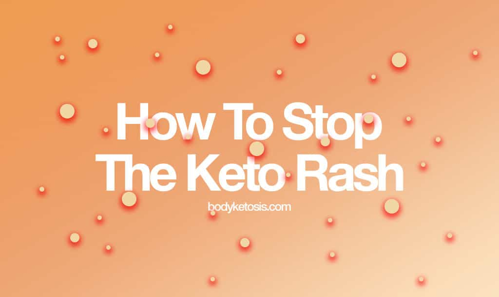 How to STOP the Annoying Keto RASH (Everything You Need To Know ...