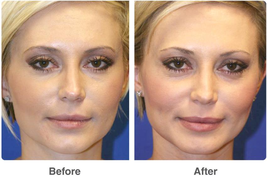 Las Vegas Cosmetic Surgery Provides Excellent Services