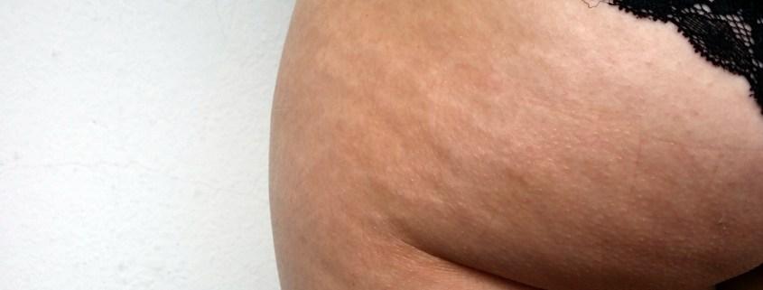 Wie du mit diesen 5 Tipps deine Cellulite glätten wirst