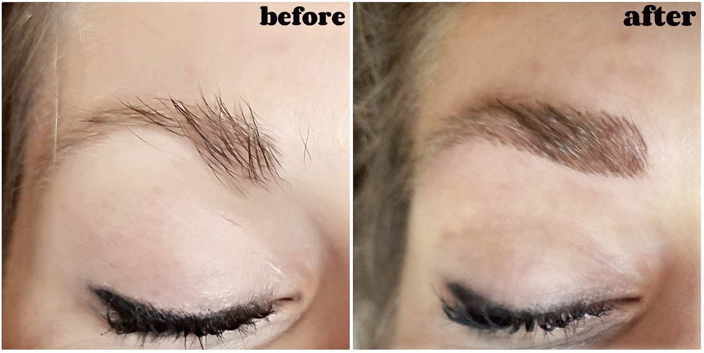 before and after of hyper pigmentation eyebrows with best brows microblading correction dallas