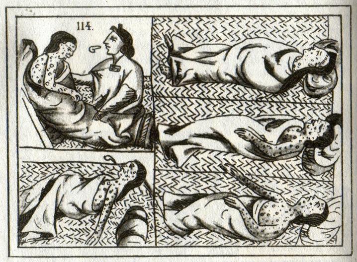 16th-c. Aztec drawing of smallpox victims.