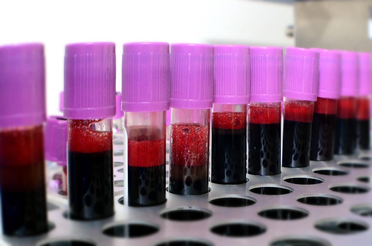 vials of blood