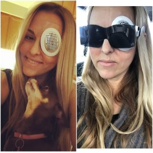Nicole is wearing her shield to protect the eye after the vitrectomy. Second pic is of her wearing the shield and paper glasses after she had one of many follow-ups with the surgeon and was dilated.