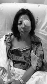 Helen Gentry surgery photo