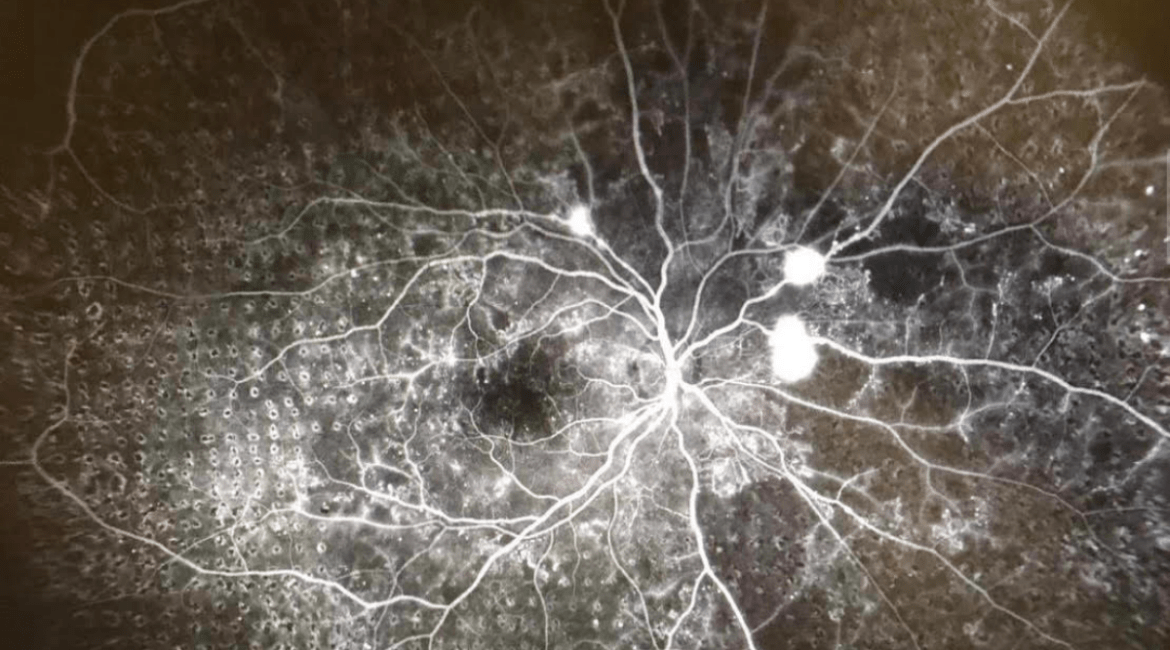 Photo of an angiogram (retinal image) All those little circles are laser burns which still trips me out when I see it again because they are everywhere. The black spots are vision loss and I do believe the bright spots are leaking vessels