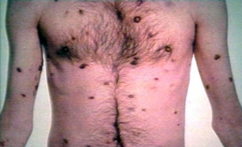 from Jayceon gay men associated kaposis sarcoma