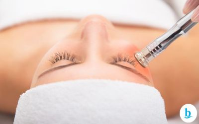 Peeling de Diamante associado a limpeza de pele, entenda já a eficácia!