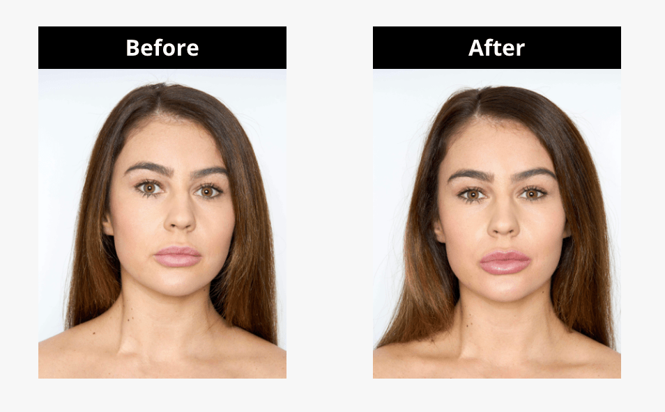 A before and after shot on how the Lip MD works to plump lips