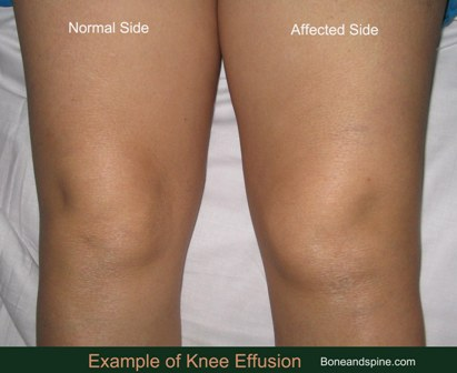 Knee effusion causes and treatment bone and spine knee effusion ccuart Images