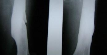 Radiograph of Chronic Osteomyelitis of Femur