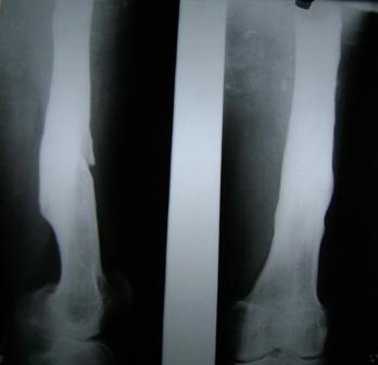Chronic Osteomyelitis of femur