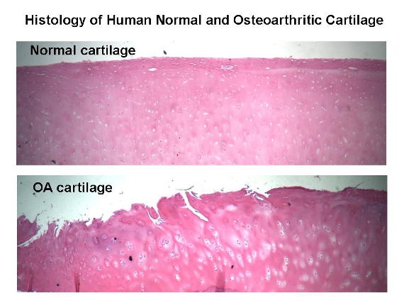 Normal and Osteoarthritic cartilage