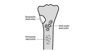 Different Patterns of Bone Destruction