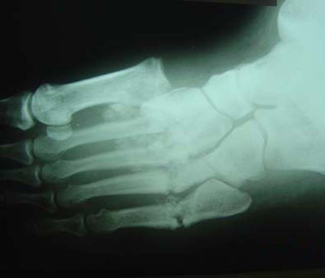 charcot-joint