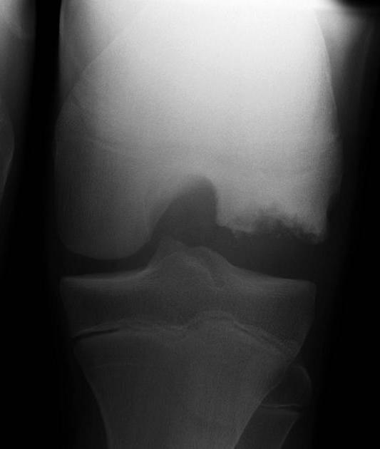 Osteochondritis Dissecans Knee
