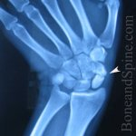 Scaphoid Fractures – Causes, Classification, Presentation and Treatment
