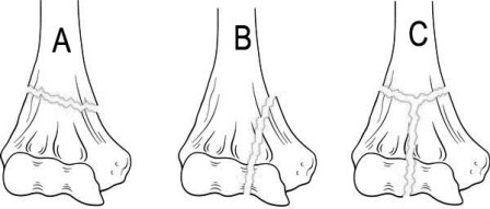 classification-distal-end-of-humerus-fractures