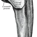 Coronoid Fracture Elbow