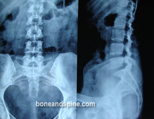 Anteroposterior and Lateral Views of Lumbar Spine -The xray in the picture is of 36 years old lady who came with complaints of back pain. Her lateral view shows reduction in lordosis of lumbar spine or straightening of the spine.