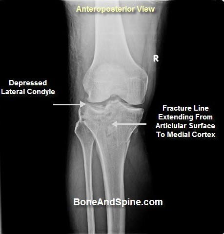 Intraarticular Fractures Principles and Management | Bone and Spine