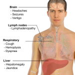 What is Metastsis Process and Its Routes