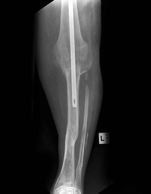 Knee Arthrodesis with K-nail