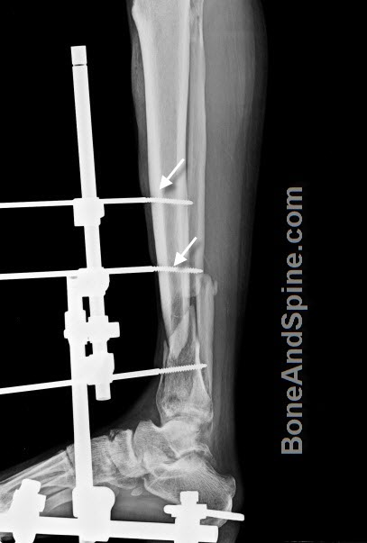 Fracture lower third tibia with bent fixator