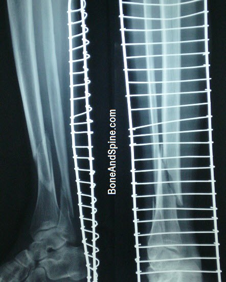 Spiral fracture lower third tibia