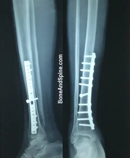 Operated fracture of tibia lower third with plating and lag screw