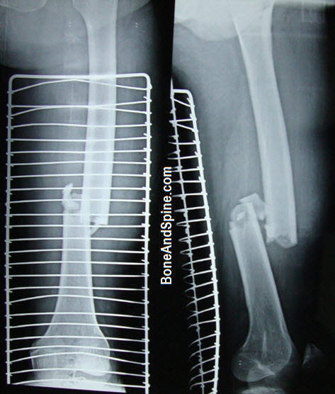 Knee xray showing medical condyle and shaft femur fracture