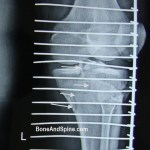 Fracture of Medial Condyle of Tibia